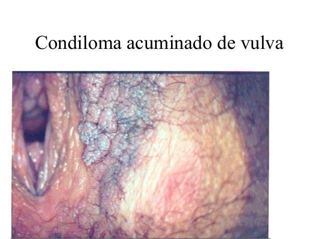 vulva cu condiloame